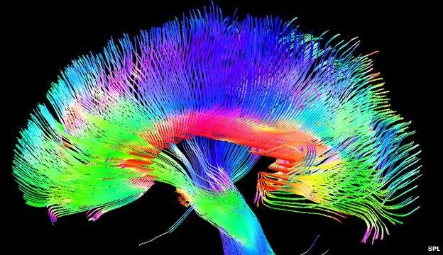 artists brain